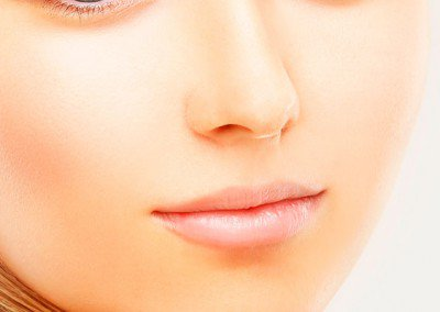 Cirugia Estética Facial Rinoplastia
